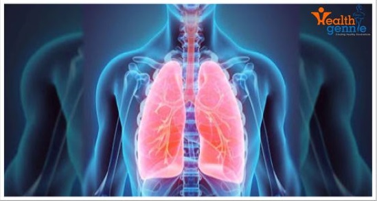 Find the right treatment for tuberculosis & chest disease   health gennie
