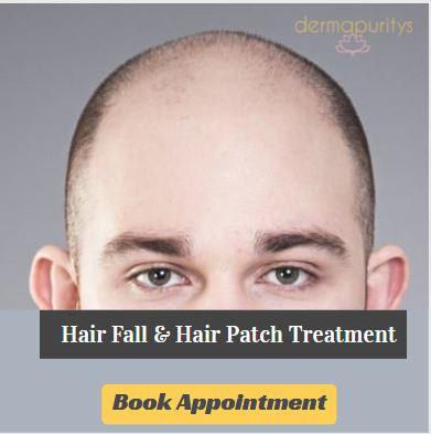 Best hair transplant clinic in delhi
