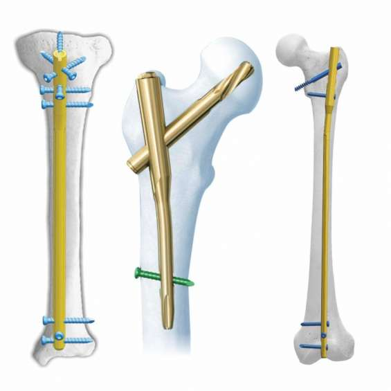 Orthopedic products manufacturers