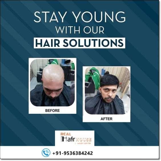 Hair patch in delhi ncr