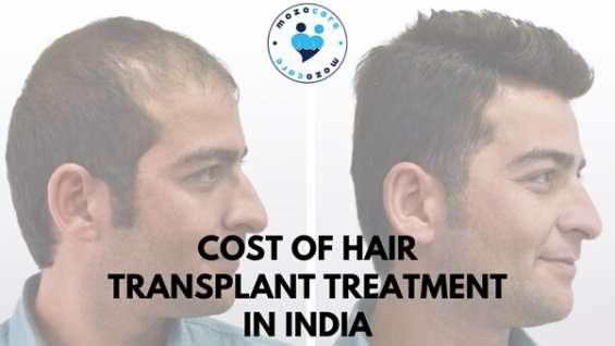 Best hair transplant in india
